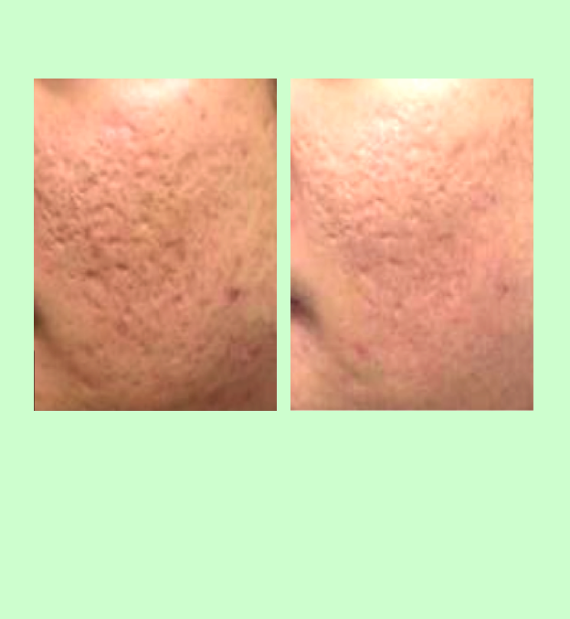 PRP for treatment of acne scars   PRP and microneedling can be used to treat acne scars, and most non-keloid scarring.