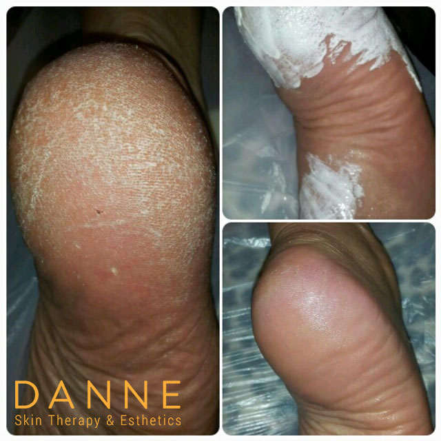Alkaline wash - corns, callouses, and very dry, flaky skin removal.
