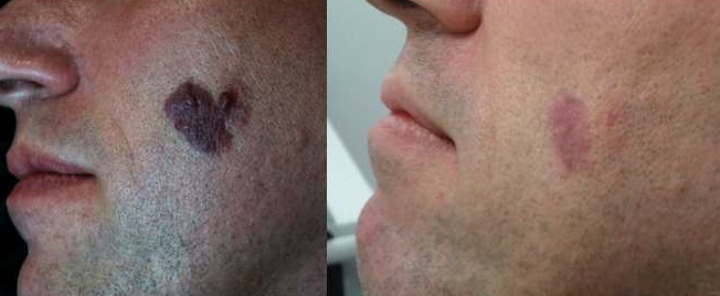 Birthmark pre and post laser treatment