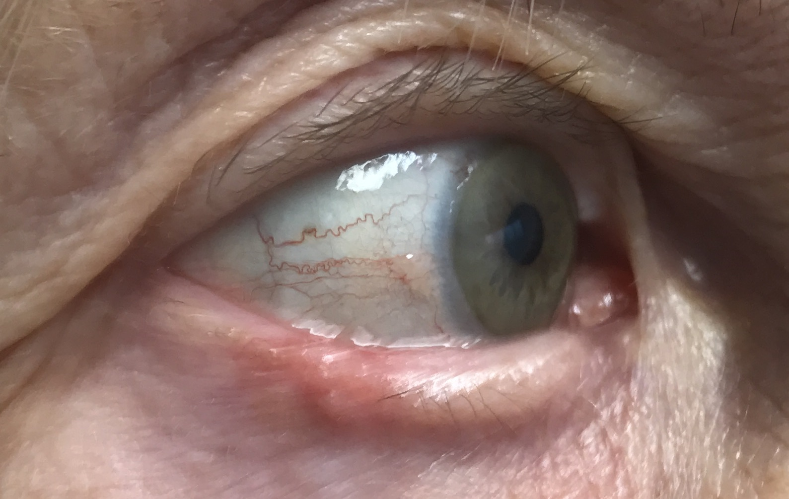 LOWER EYELID BASAL CELL CARCINOMA (BCC)