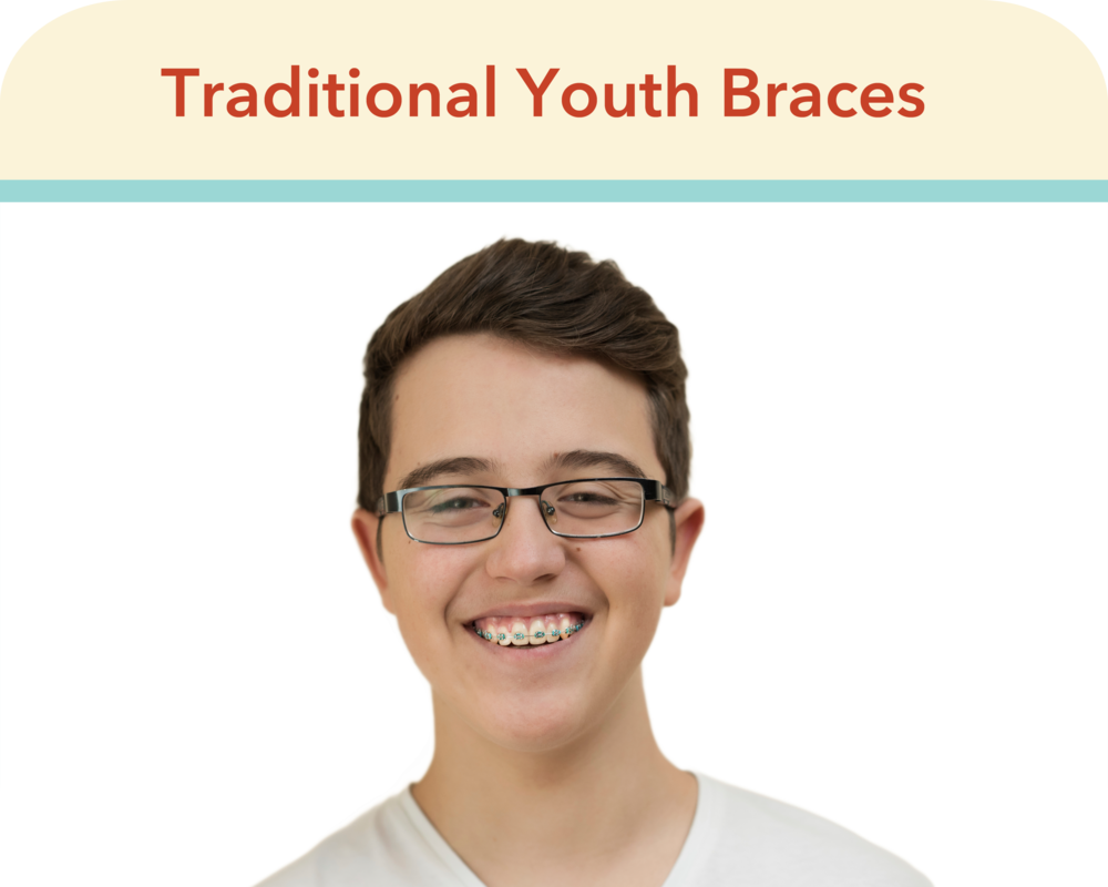 TraditionalBraces.png