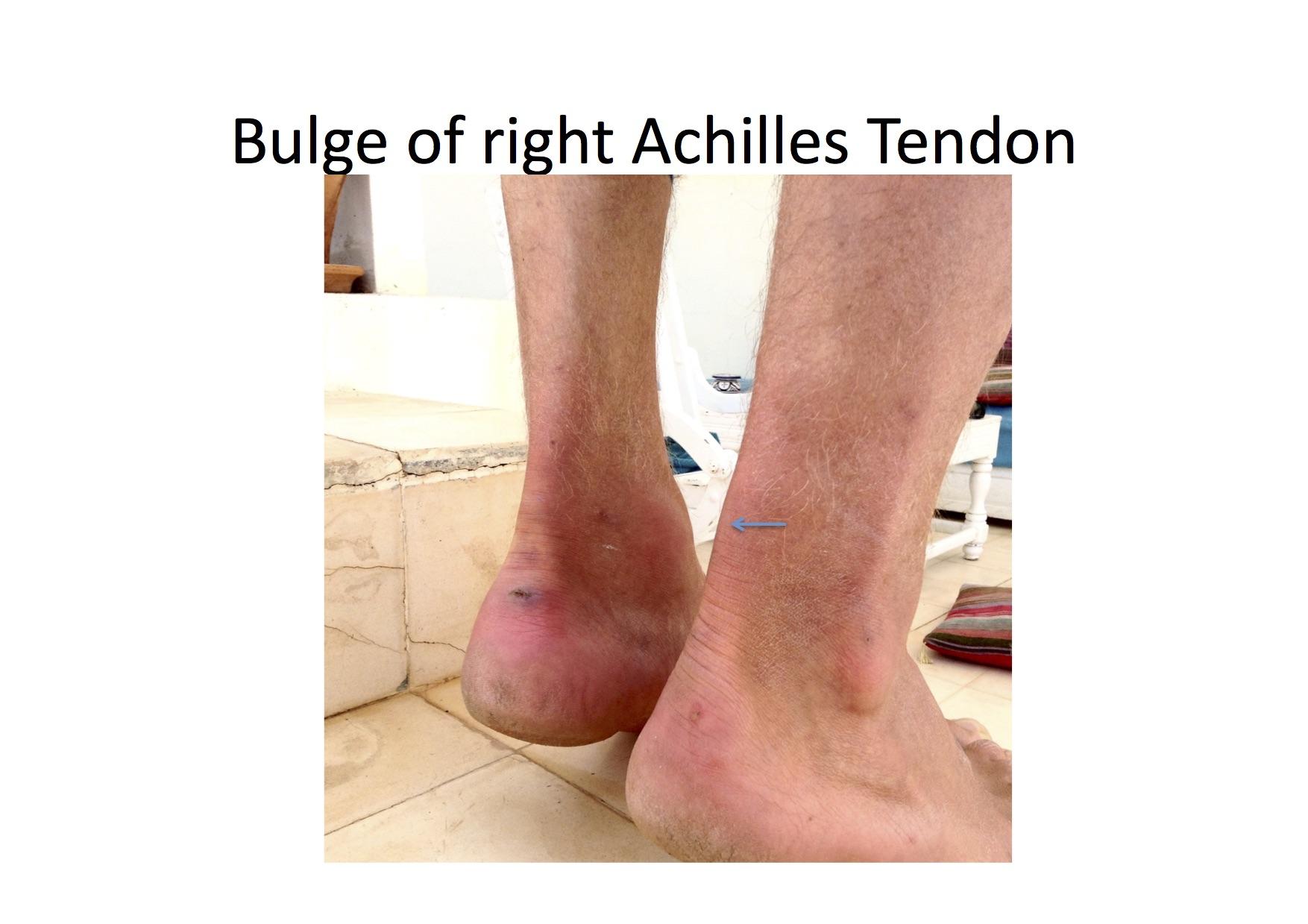 Achilles_tendonitis.jpeg