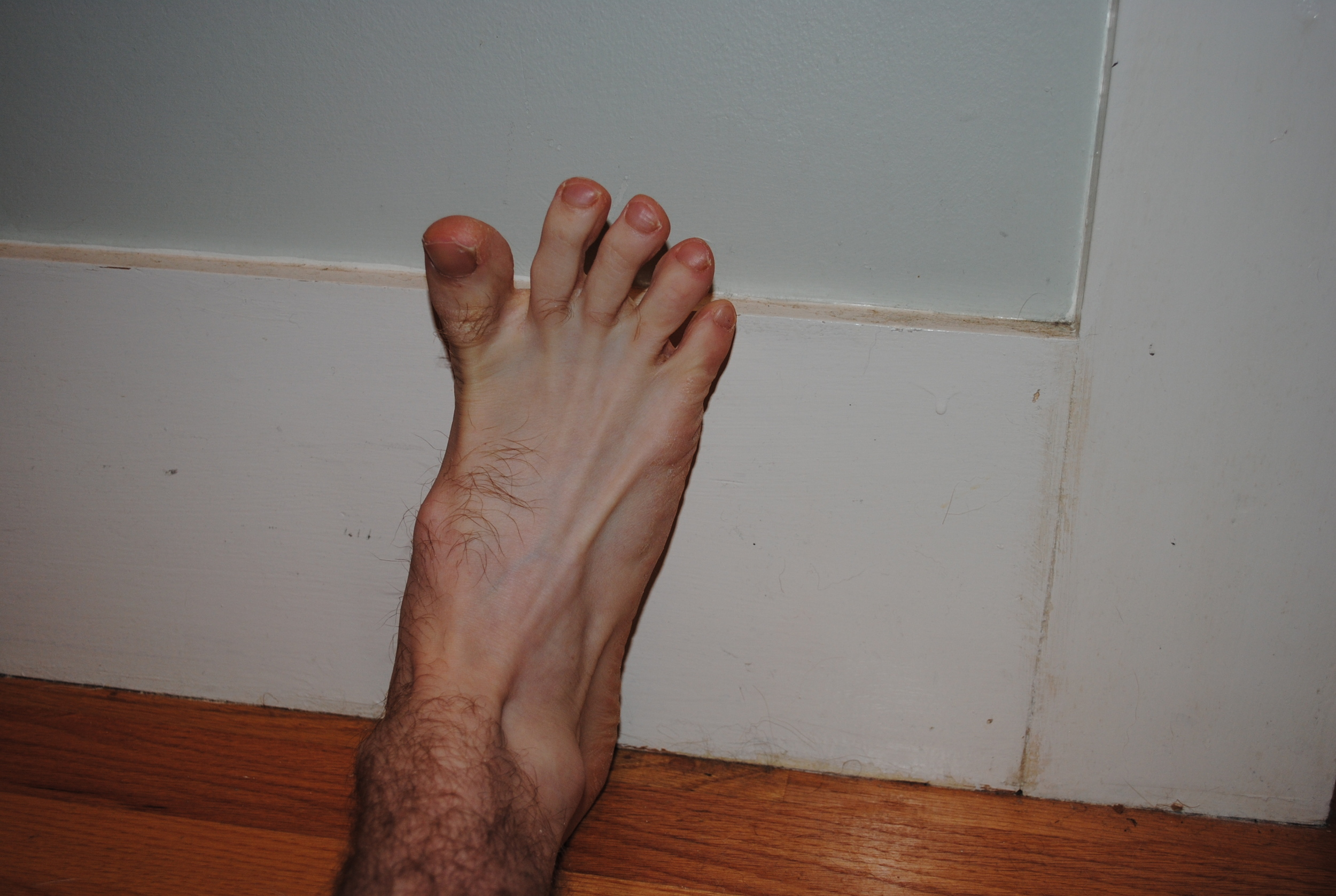 Spread your toes apart as far as you can.