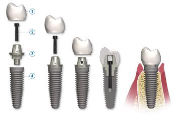 dental-implant-breakdown.jpg