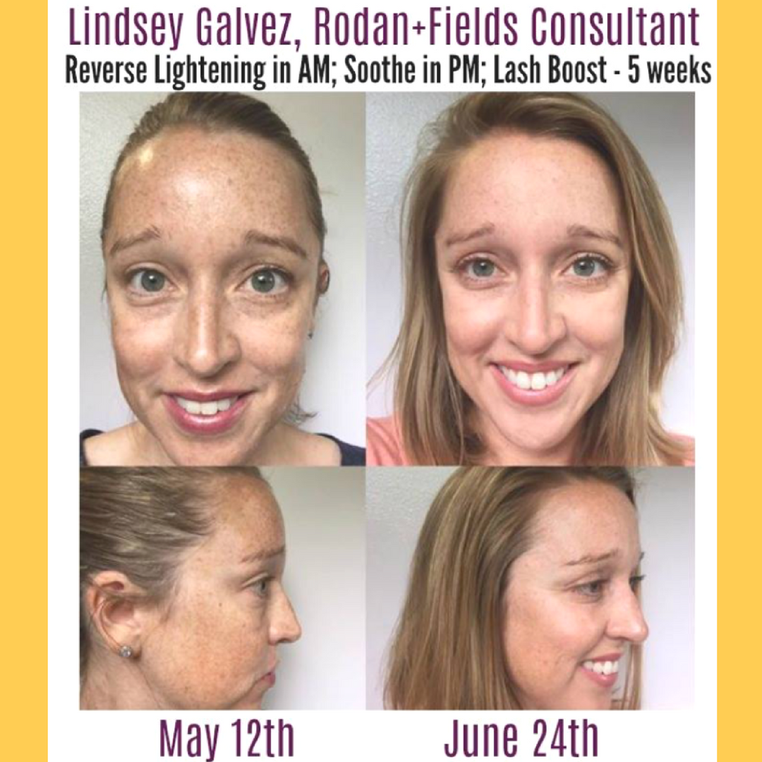 rodan_fields_reverse_results