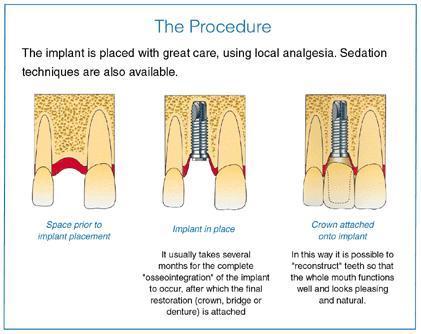 dentalimplants2.JPG