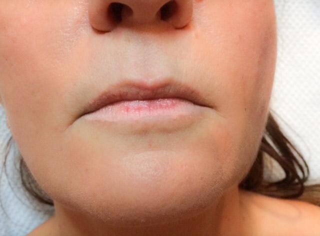 Permanent Make Up Lippen vorher.jpg