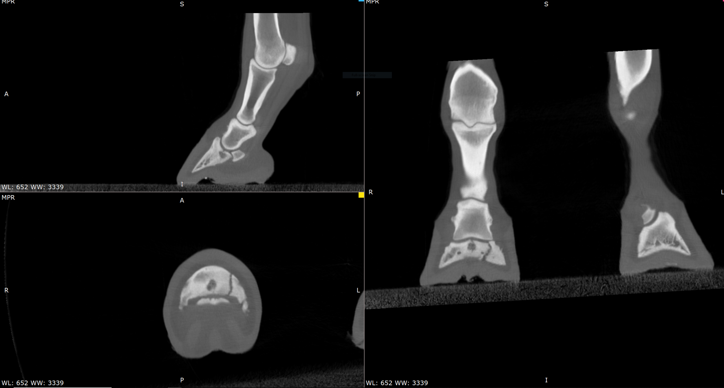 Retired racehorse with chronic P3 fracture