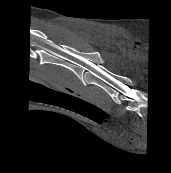 Contrast myelogram