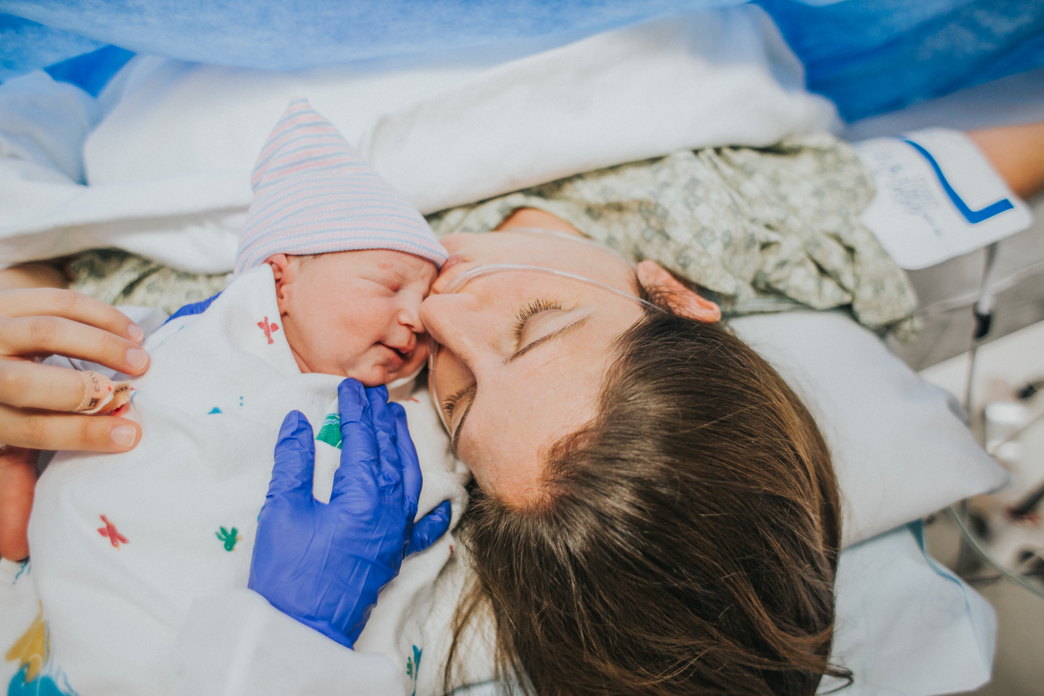 rosacea during pregnancy.jpg