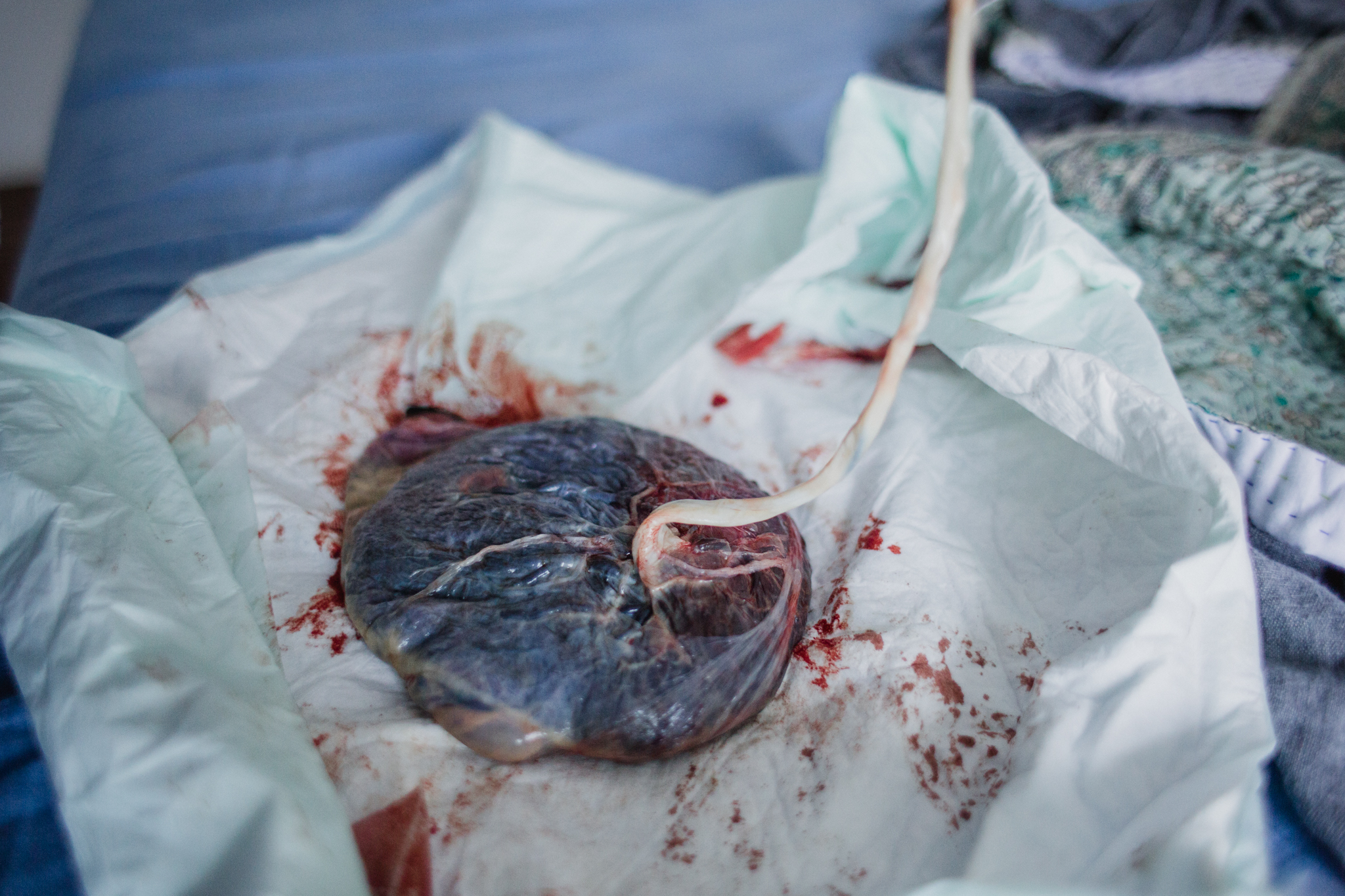 placenta and umbilical cord.jpg