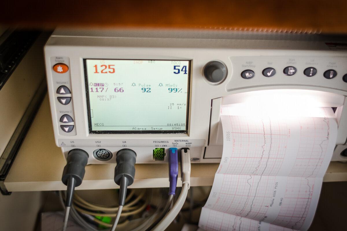 fetal monitoring device during labor.jpg