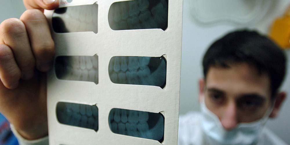dental-fillings-1.jpg