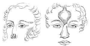 4rhinoplasty.jpg