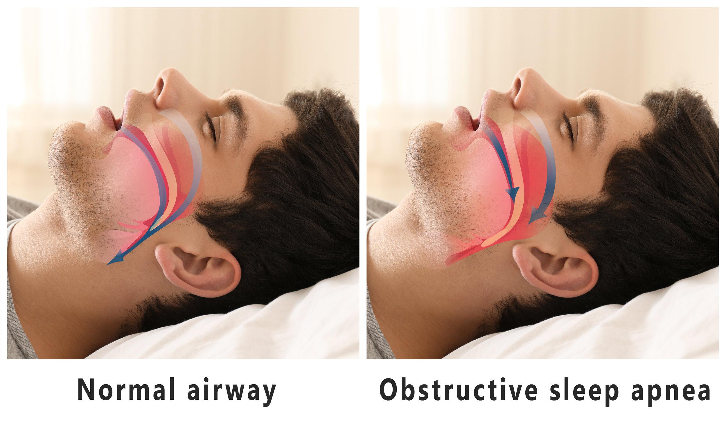 Normal Airway vs Obstructive Sleep Apnea