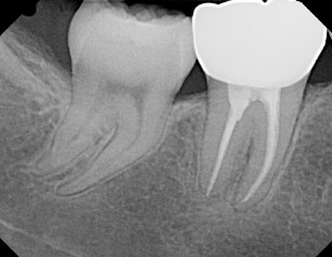 Periapical x-ray of tooth #31 with RCT and crown done by Dr. Lopez in 2013.