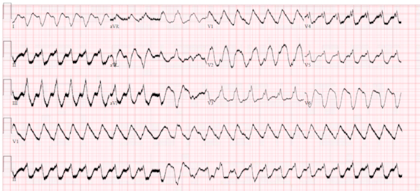 From Dr. Smith's ECG Blog, smaller than original.  Click image to go to source.  In accordance with Attribution-NonCommercial 4.0 International (CC BY-NC 4.0).