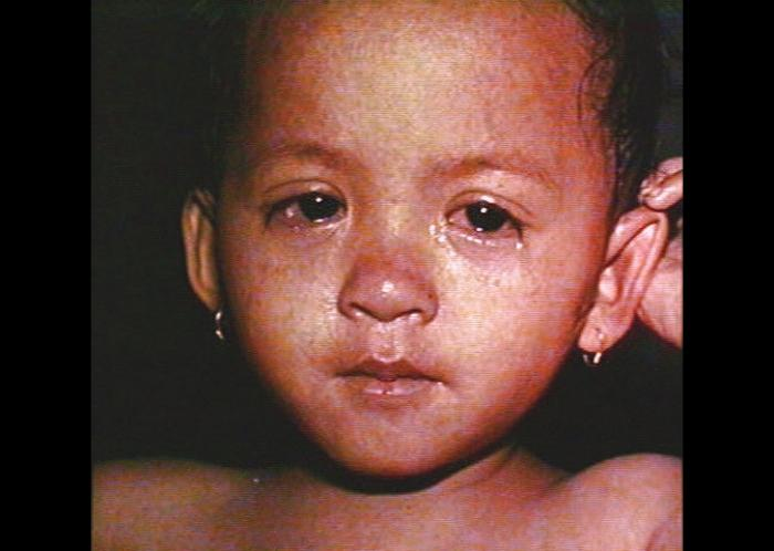Image 1, Measles rash on face, conjunctivitis, mild coryza.  From CDC .