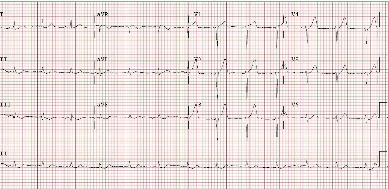 This is from Dr. Smith's ECG blog and is not the ECG from the cited article, though it illustrates the same point. This tracing is a 46 year old with chest pain. It does not have R-wave regression, but it does have poor R wave progression. Click image for source link.