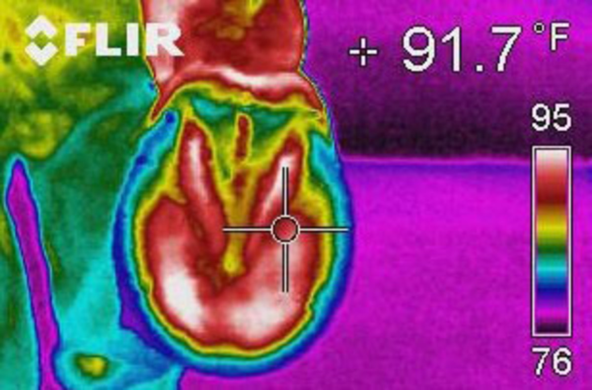 ph-0114-thermography-01.jpg