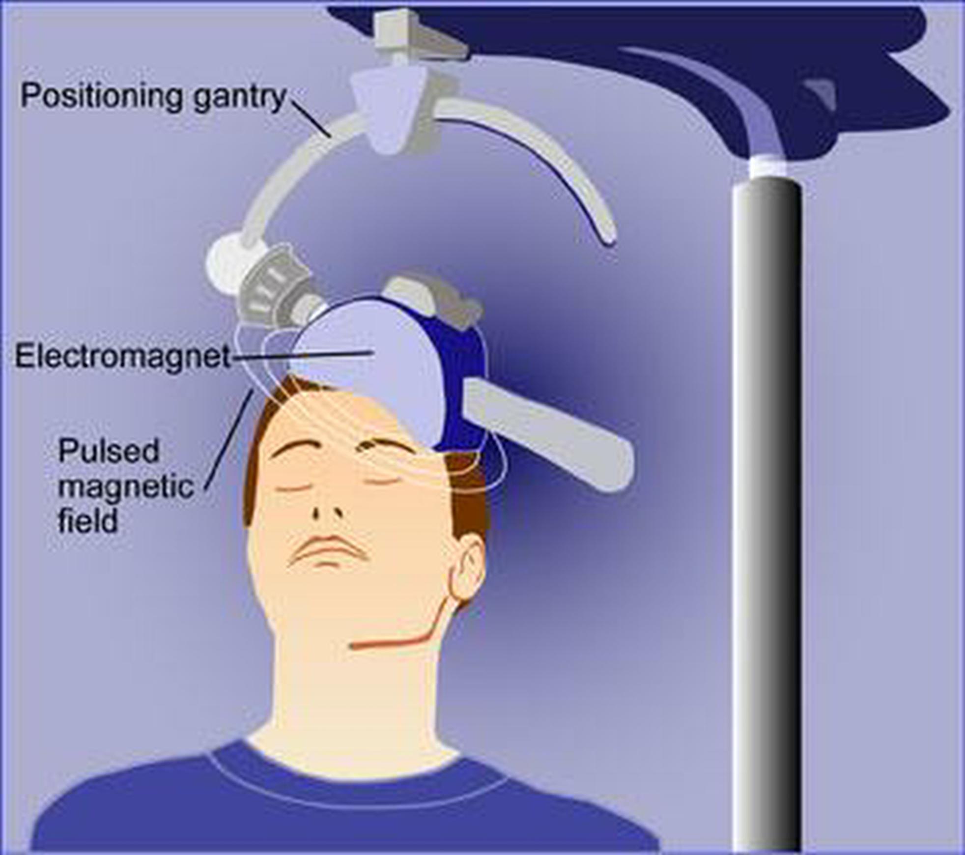 Repetitive Transcranial Magnetic Stimulation [rTMS]