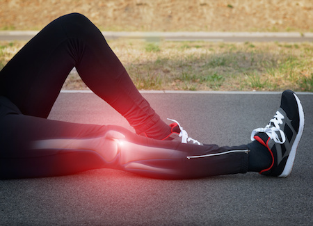 Knee pain is common in runners, cyclists, agility sports and people who don't exercise.