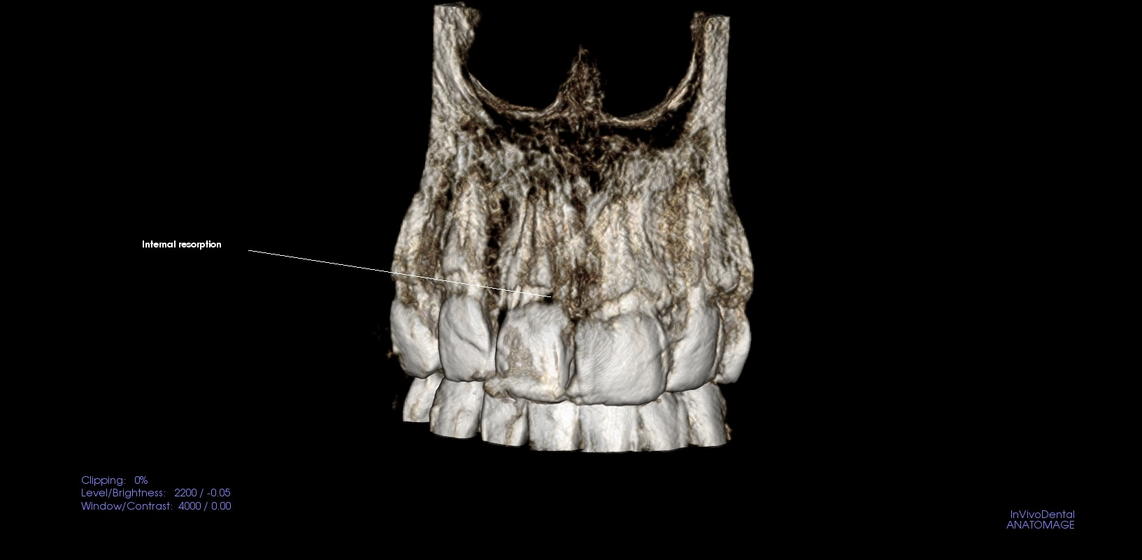 Front Tooth with internal resoption