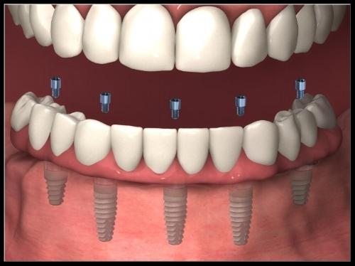 teethxpress2.jpg