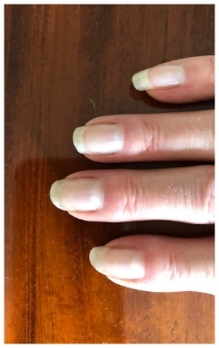Jill's elegant healthy hands a year later