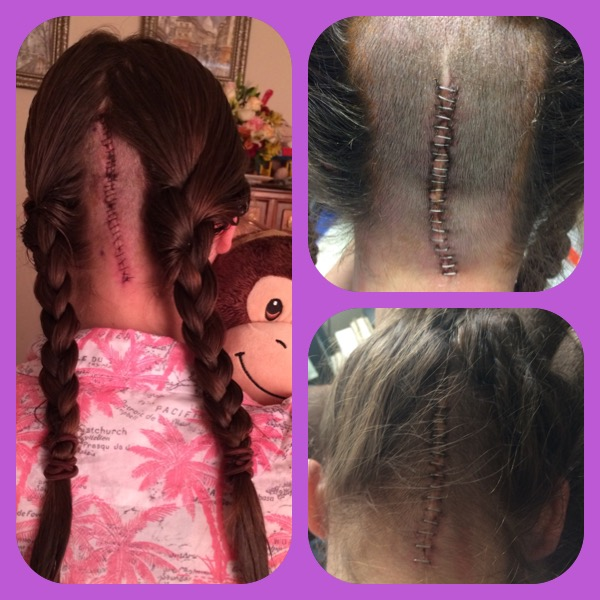 "The picture on the left is my incision from the surgery I had last year. the two on the left are my ""new"" incision. One is immediately after surgery, and one is about a week later. The staples come out in a week. While I've had significantly more hair shaved, it does appear cleaner."