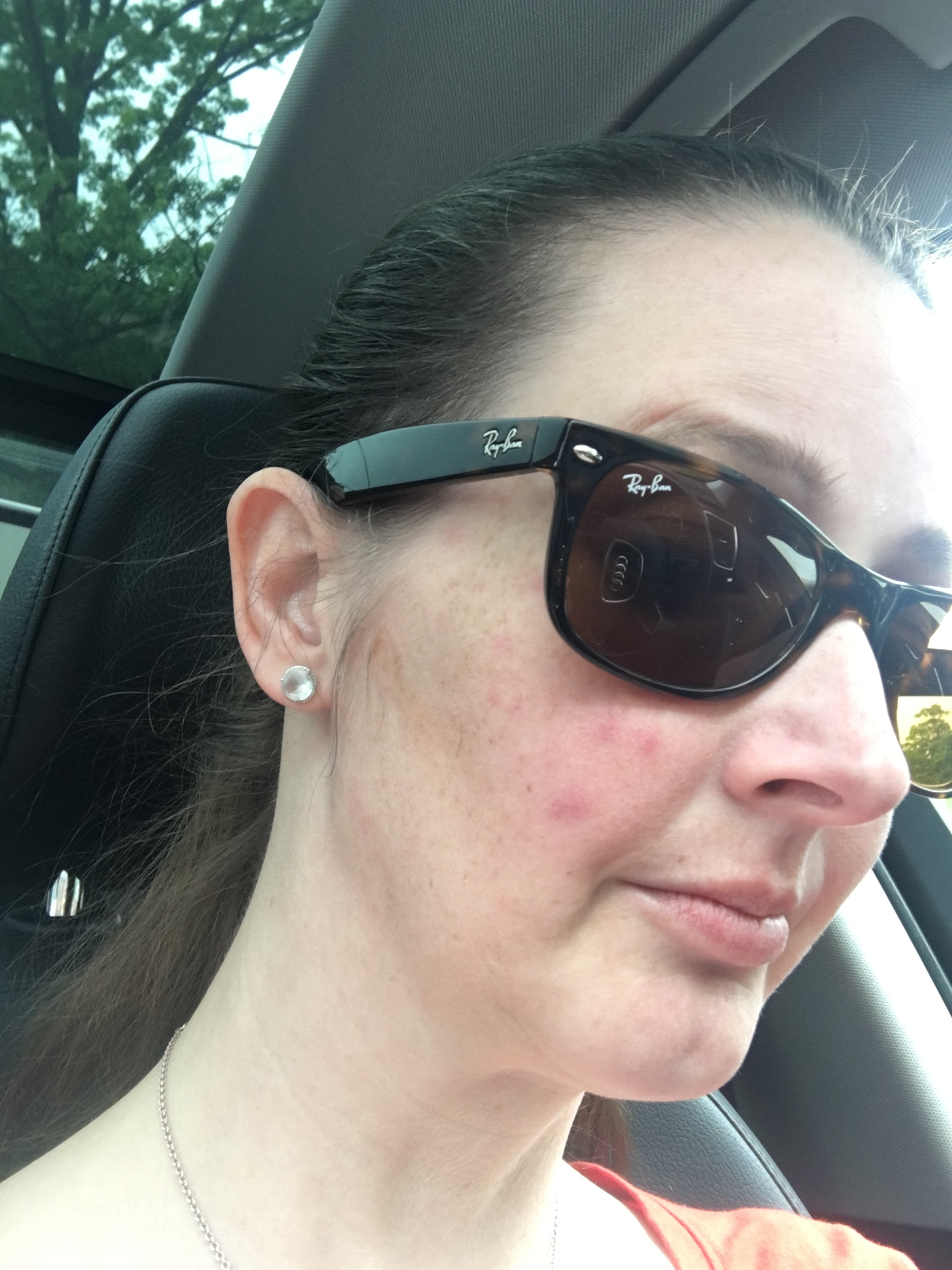 "It's almost embarrassing to show you all this picture because it barely shows the rash, here. But, this is the"" ""best"" picture I have of it. Half of my face is covered by sunglasses, and half of my spots aren't visible. Overall, it's a pretty dumb shot to ""show off"" a rash. But, here it is. And, it's a HIDEOUS picture of me. It's probably not the ugliest picture I've ever posted here, but it's still not great! But, you get the idea of what some of the spots looked like."