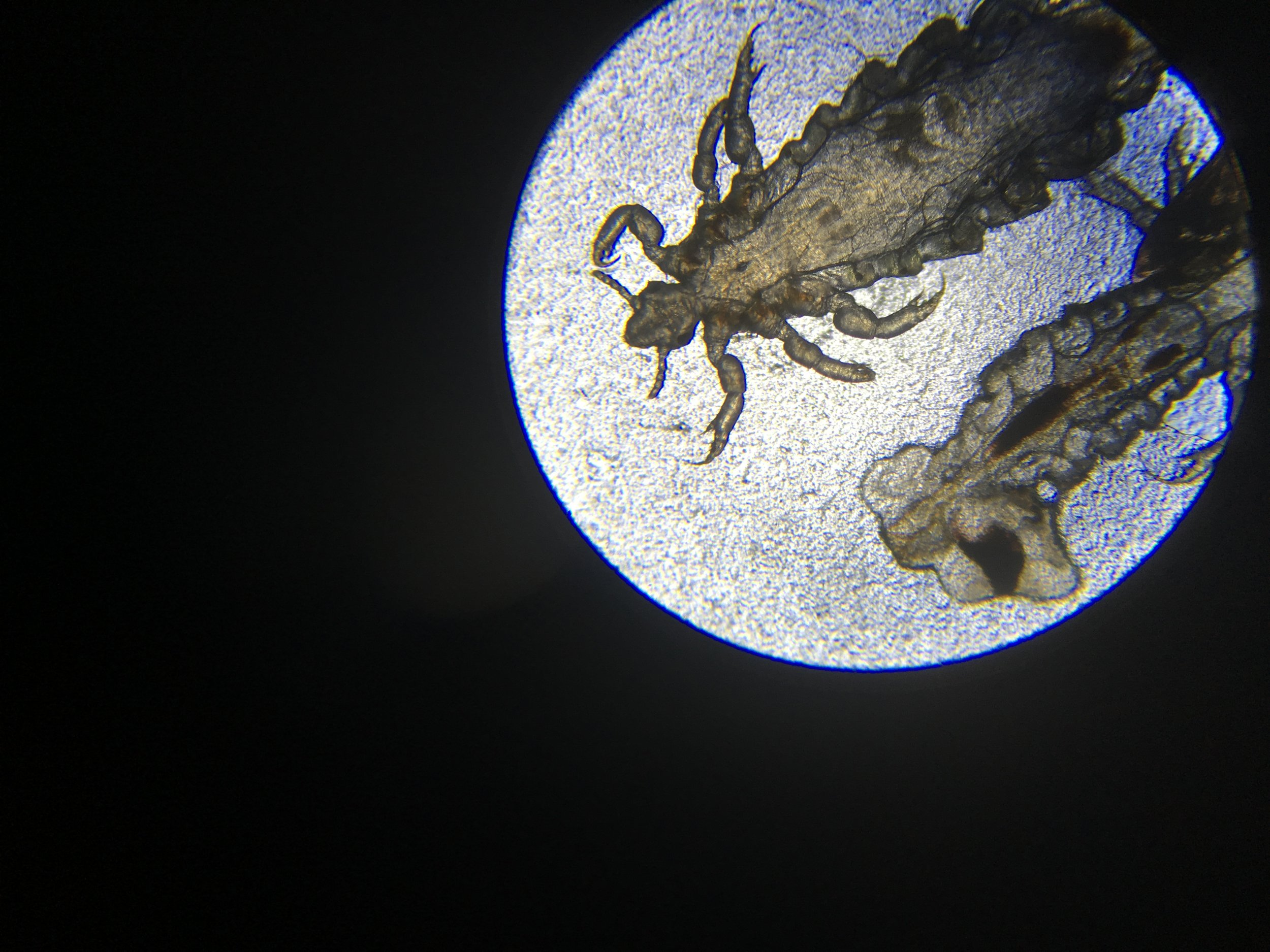 These are OUR personal lice. These came from Collin's head and he took a pic while looking at them through his microscope. They are pretty gross little fellas, aren't they?