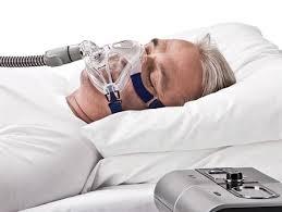 sleep apnea.jpeg