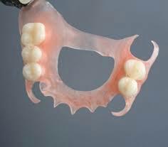 Open Palate Flexi Denture.