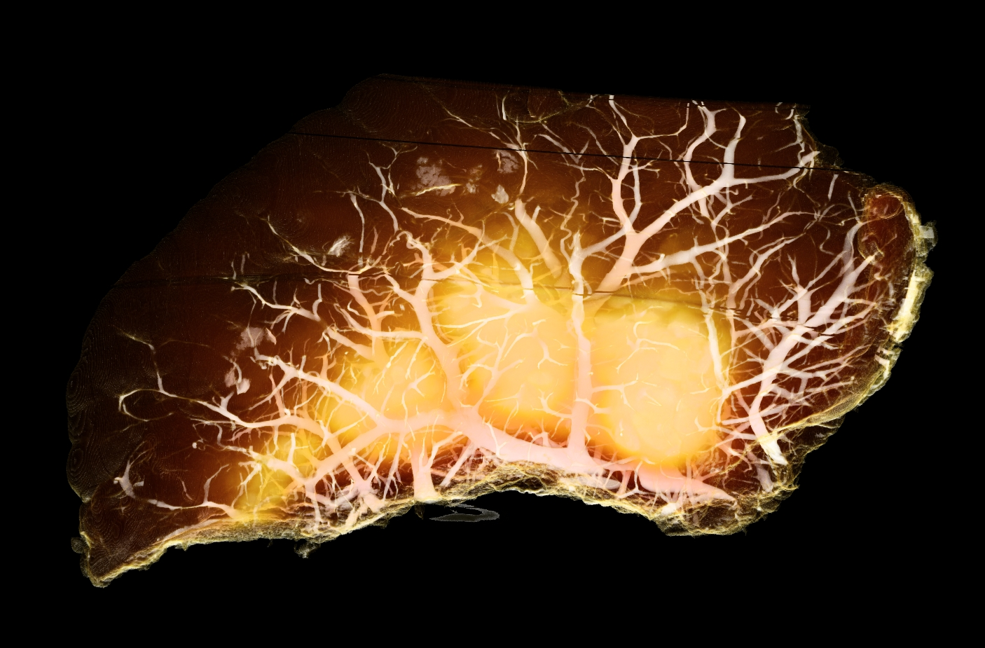 Blood vessels in the liver