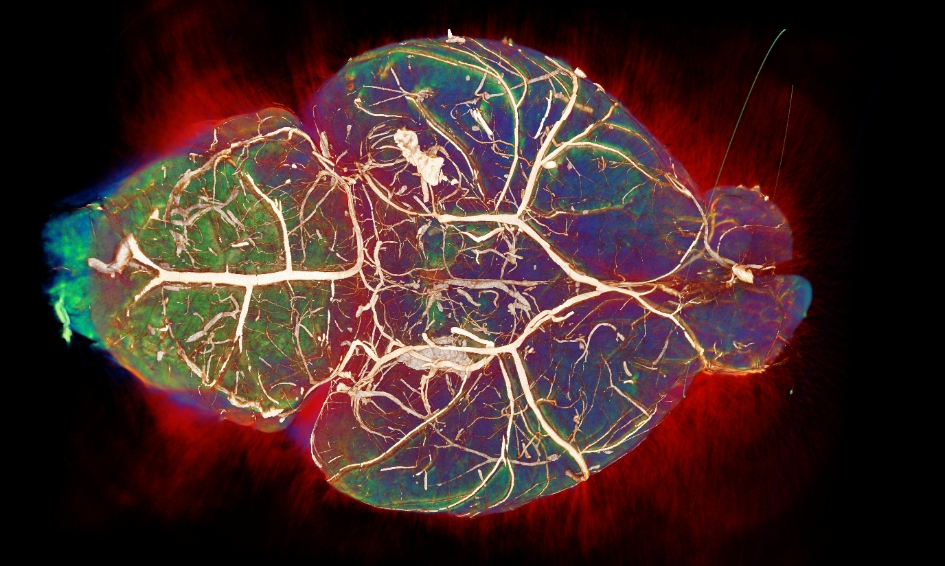 OPT of blood vessels in the brain