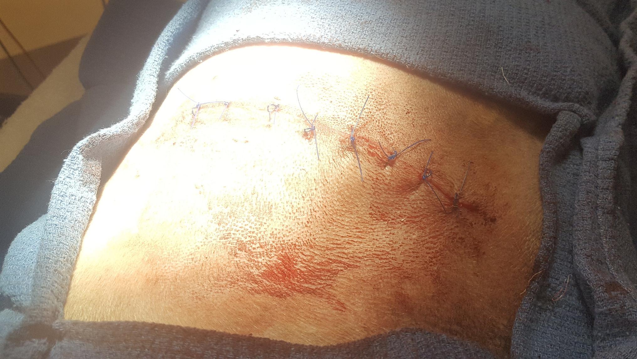 Closed incision