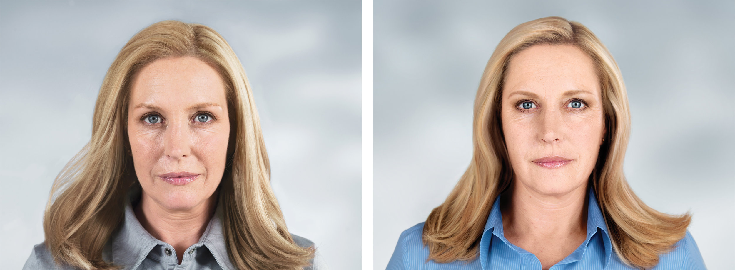 Before-and-after photo of a 49-year-old treated with Sculptra. Treatment included: 5 visits over 25 months.
