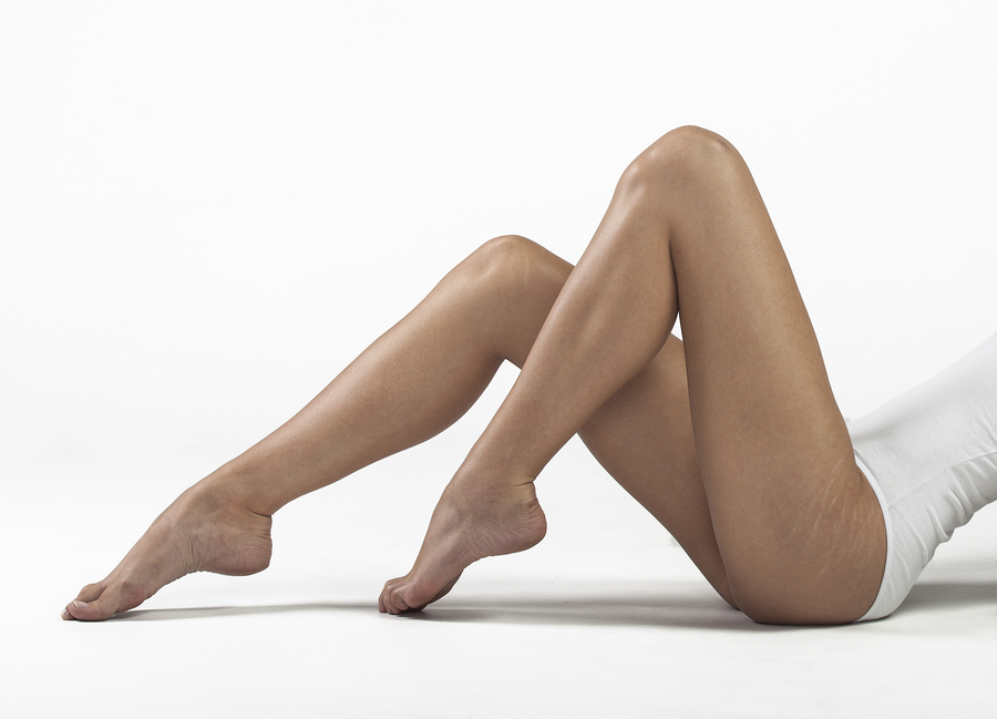 bigstock-Stretch-marks-on-woman-s-butto-112846292.jpg