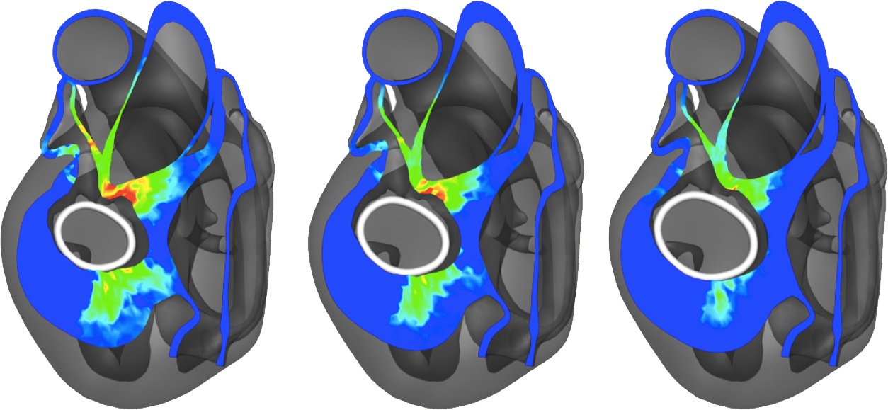 A virtual annuloplasty ring sizing tool. Shown are myocardial deformations in response to the implantation of three different ring sizes.
