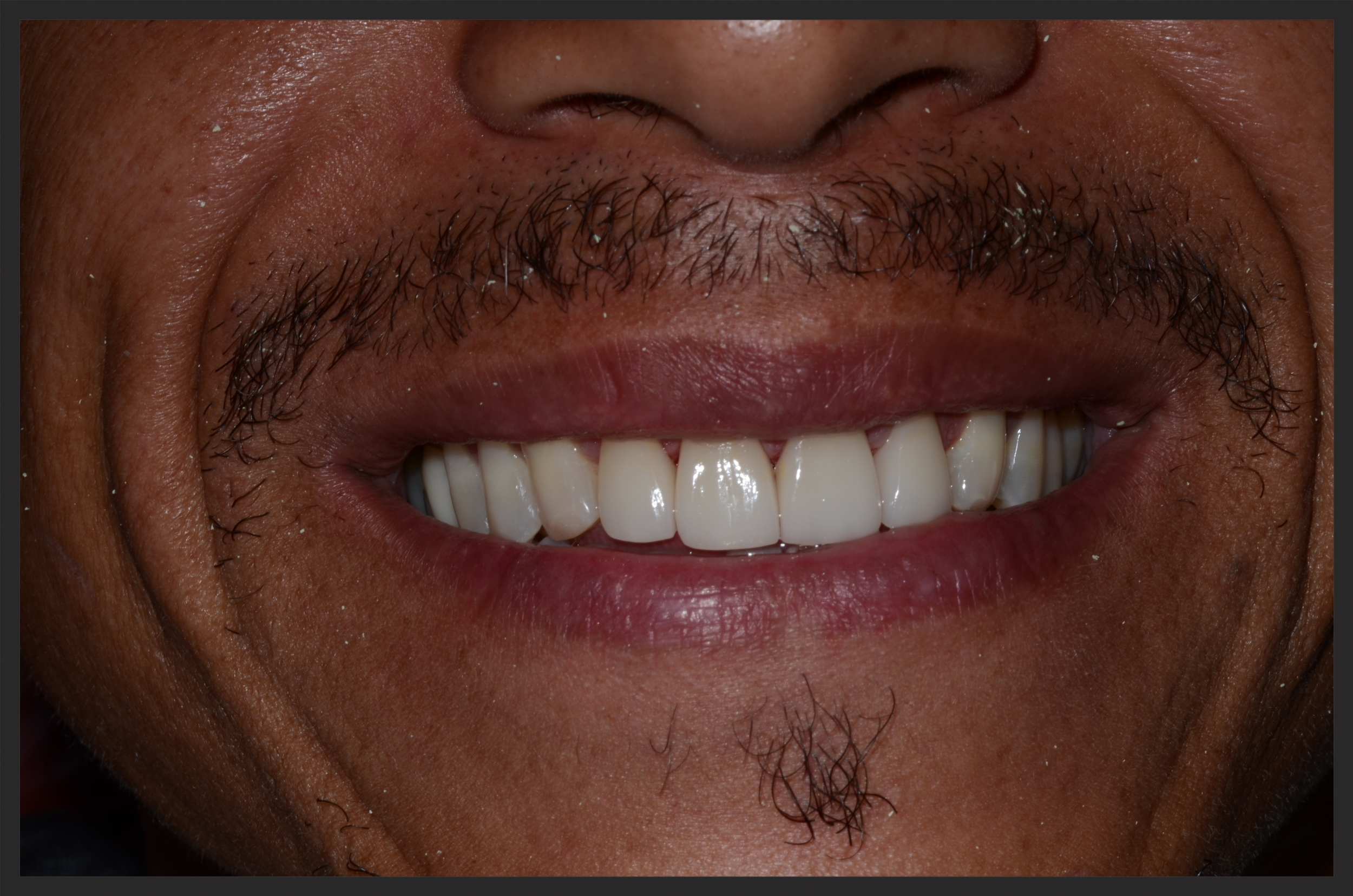 After Full Ceramic Crowns