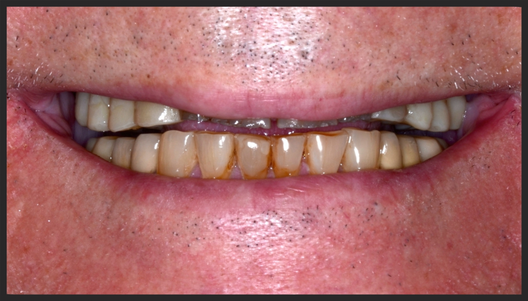 Severe Tooth Wear, Bite Collapse