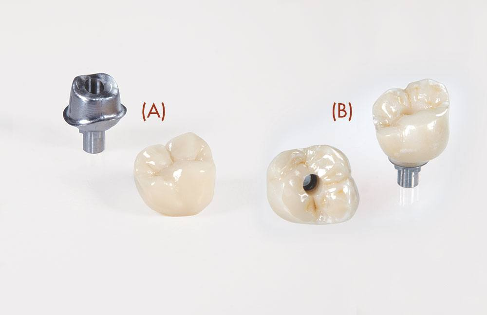 (A) Represents a CEMENT retained implant (B) Represents a SCREW retained implant