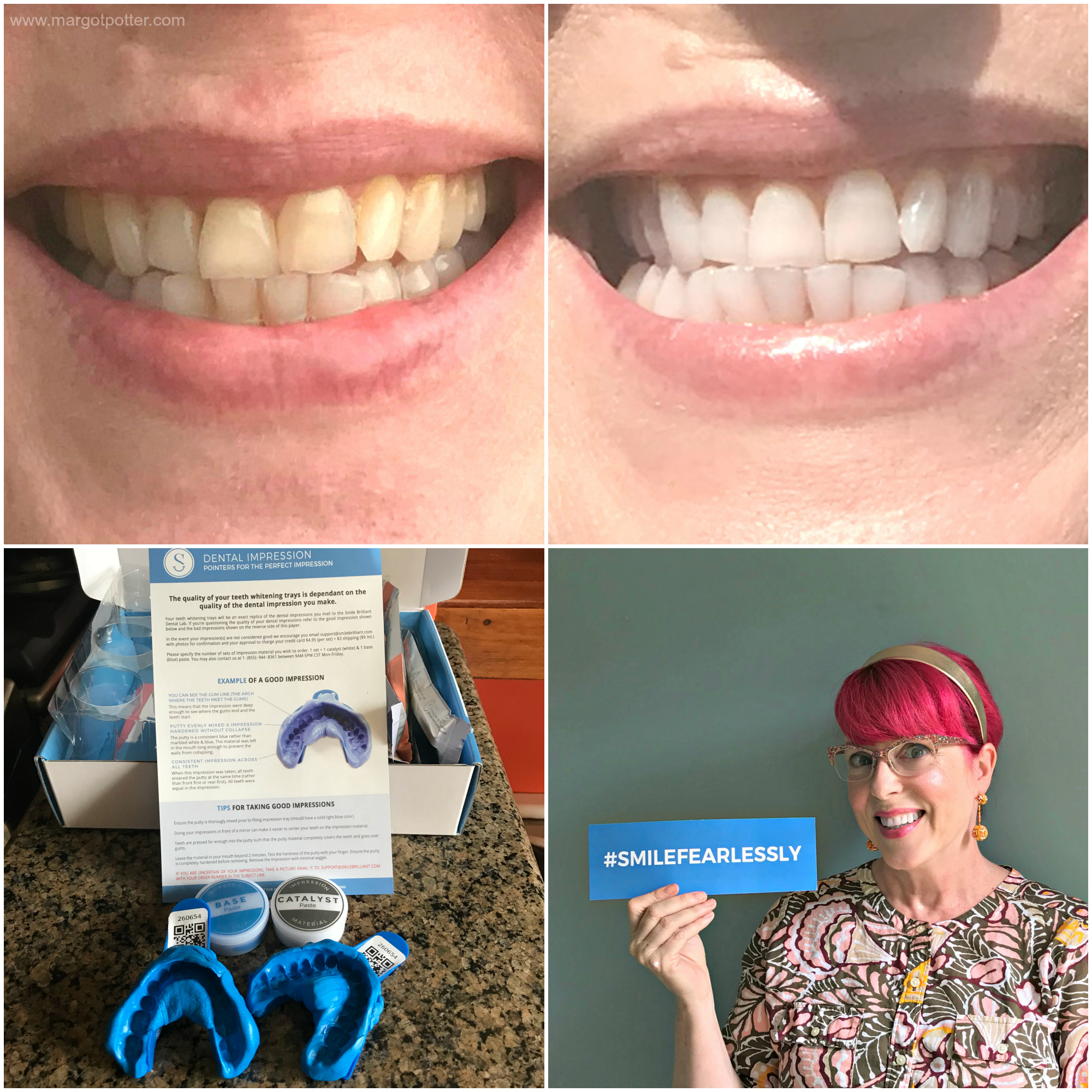 My at home Teeth Whitening Experience with Smile Brilliant!