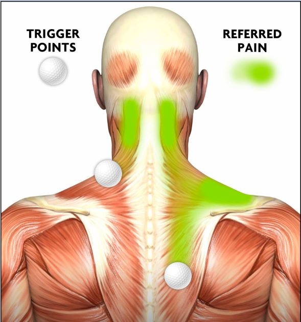 Trigger point and referred pain