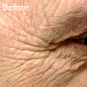 microneedling-eye-treatment-before-example-herb-and-ohm