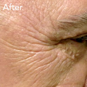 microneedling-eye-treatment-after-example-herb-and-ohm