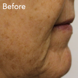 microneedling-mouth-fold-treatment-before-example-herb-and-ohm