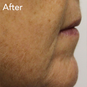 microneedling-mouth-fold-treatment-after-example-herb-and-ohm