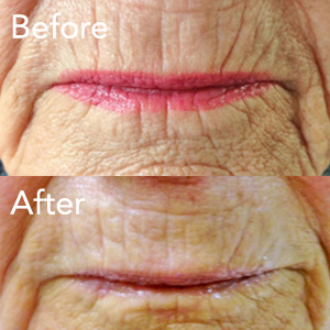 microneedling-lip-line-treatment-example-herb-and-ohm